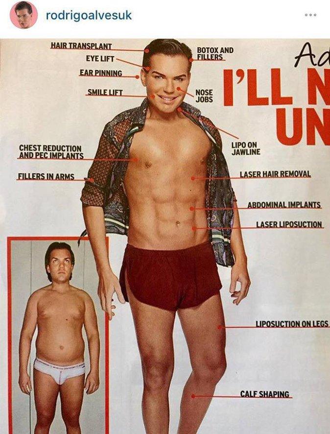 Public Buzz : Photos : Un Brésilien dépense 500 000 dollars pour ressembler à Ken !