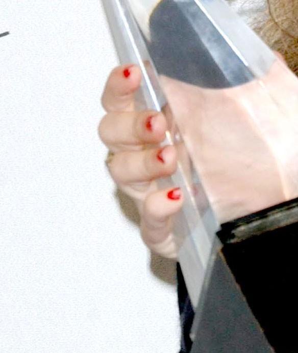 A qui sont ces ongles écaillés ?