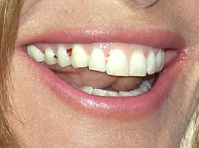A qui appartiennent ces dents sales ?