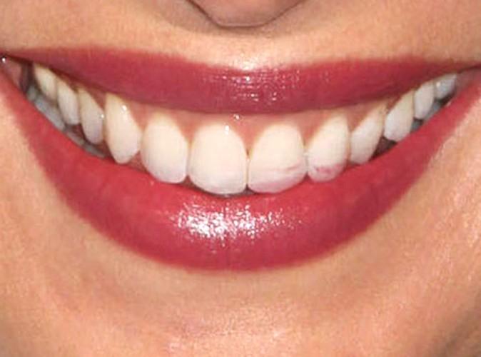 beaut u00e9  ou pas      ces stars qui ont les dents sales