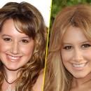 Ashley Tisdale : avant/après une chirurgie du nez