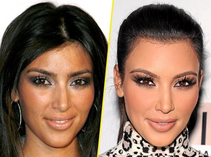 Kim Kardashian : avant/après une chirurgie le Botox