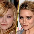 Mary-Kate Olsen : avant/après une chirurgie des pommettes et du nez