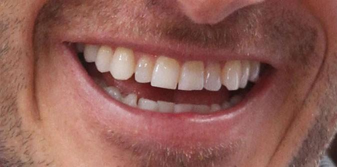 Des dents bien alignées pour le footballeur anglais !