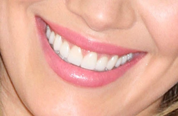 Des dents parfaite pour Lizzie McGuire !