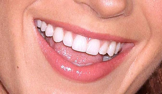 Un sourire ultra-bright pour Serena Van Der Woodsen !