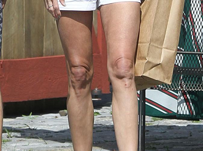 A qui sont ces genoux ?