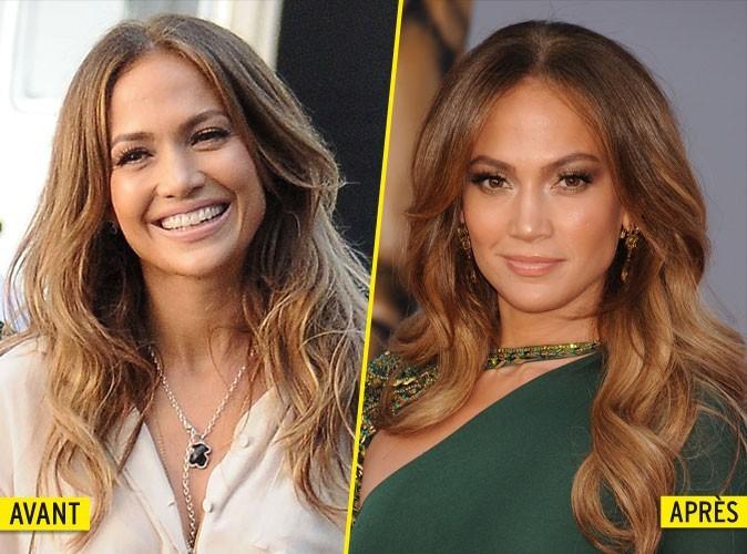Jennifer Lopez : elle a craqué pour le Botox !