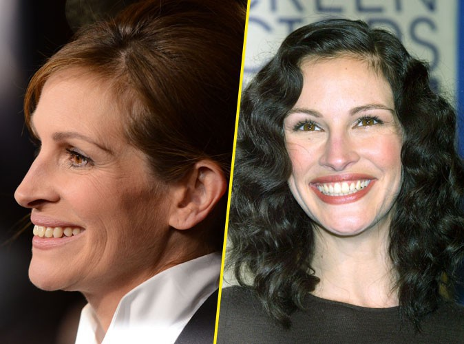 Julia Roberts : des dents sublimes !