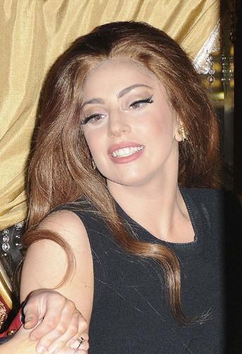 Lady Gaga souffre d'un strabisme.