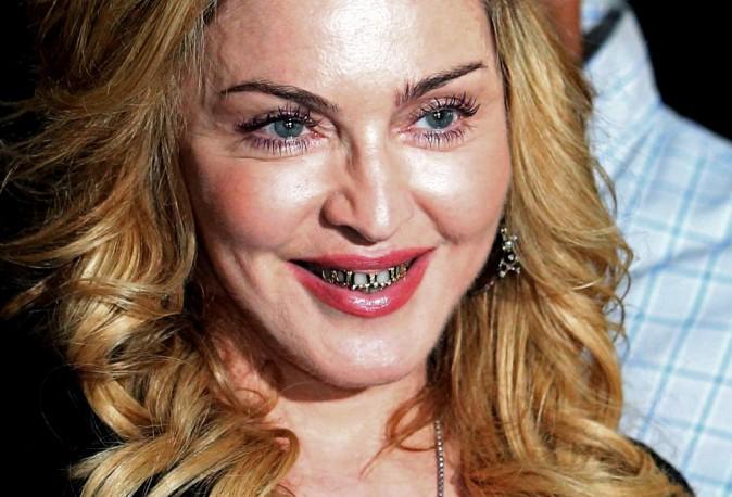 Le dentier de Madonna