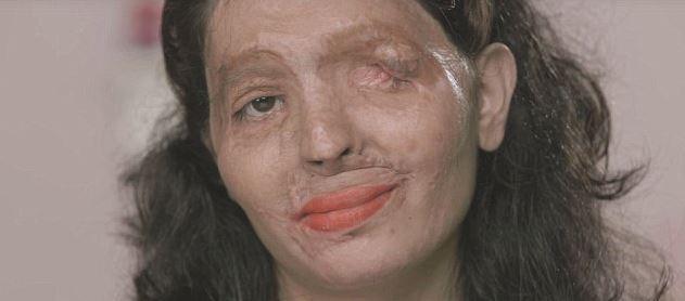 Reshma, défigurée à l'acide