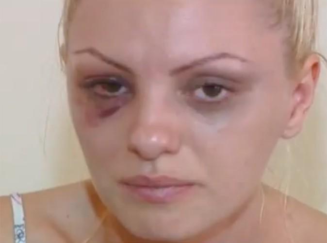 Alexandra Stan : la star roumaine victime d'une effroyable agression de la part de son manager !