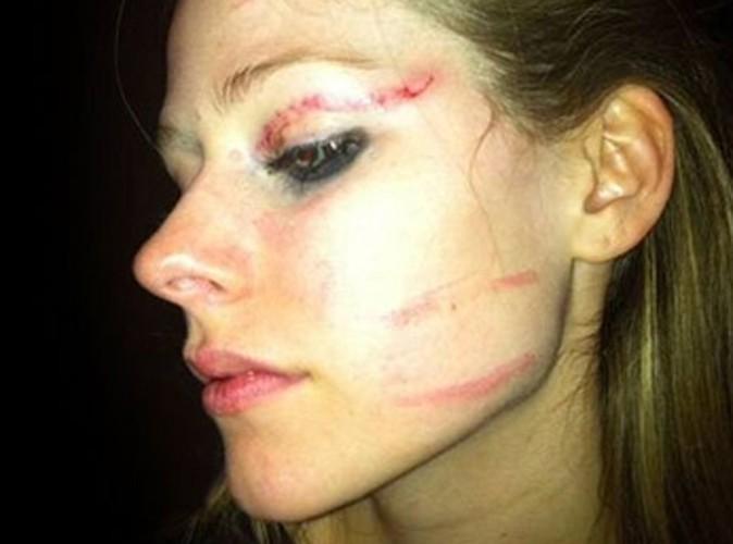 Avril Lavigne : la photo de ses blessures après une soirée qui a mal tourné !