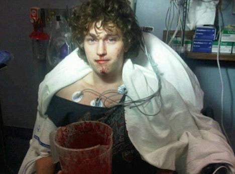 Braison Cyrus : le petit frère de Miley, en piteux état après une opération !