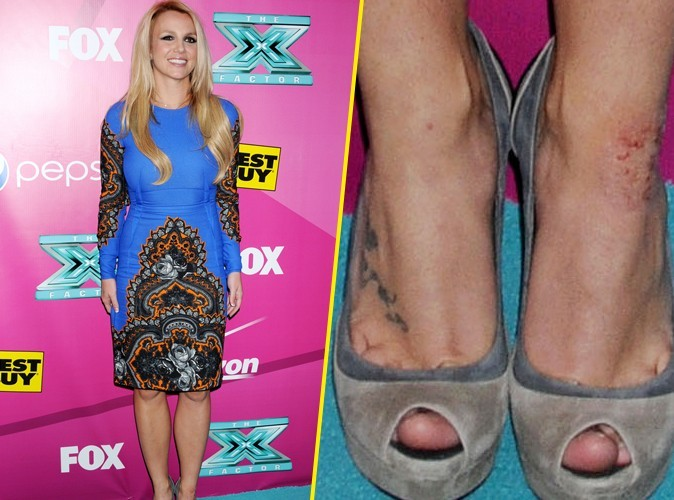 Britney Spears : comme Kim Kardashian, elle souffre de psoriasis…