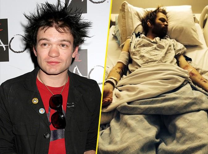 Deryck Whibley : l'ex d'Avril Lavigne a été hospitalisé pour de gros problèmes d'alcool...