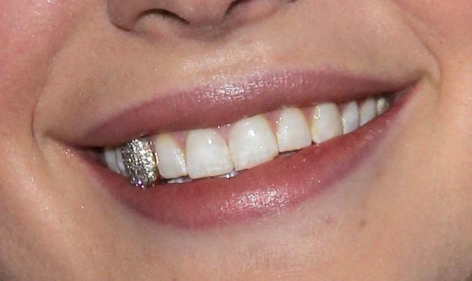 A qui est ce sourire argenté ?