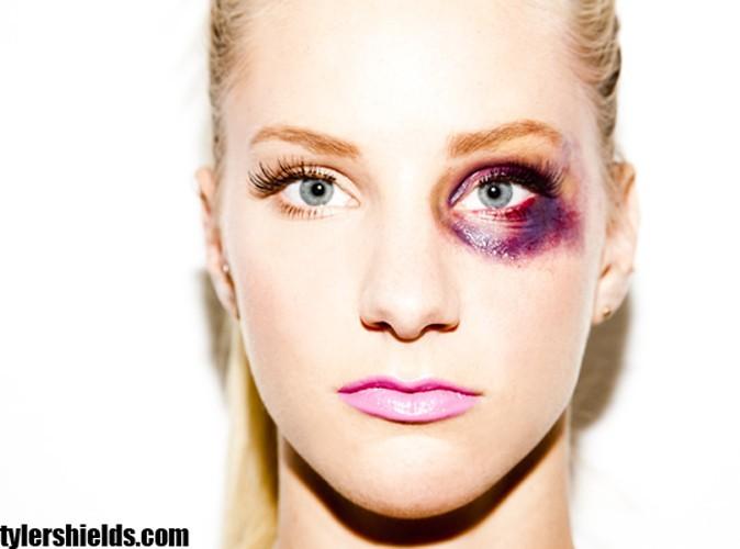 Heather Morris : la star de Glee et ses photos polémiques en femme battue !
