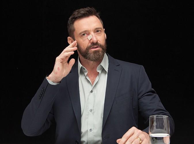 """Hugh Jackman : """"Je suis réaliste, j'aurai probablement plusieurs cancers"""""""