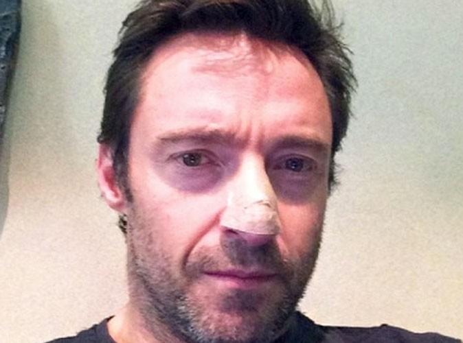 Hugh Jackman : l'acteur annonce être atteint d'un cancer et sensibilise ses fans…