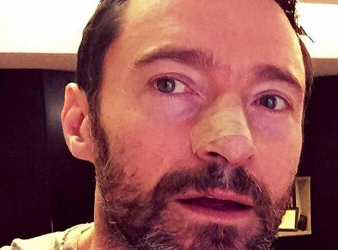 Hugh Jackman : l'acteur opéré pour la 5ème fois d'un cancer !