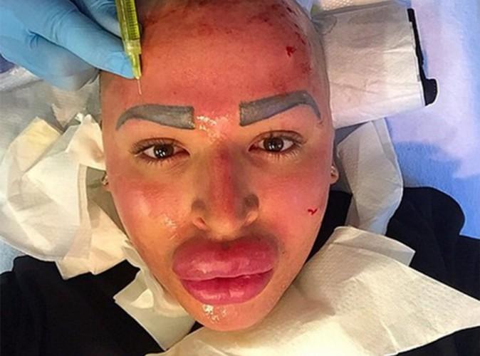 Jordan James Parke : visage en sang et lèvres plus gonflées que jamais !