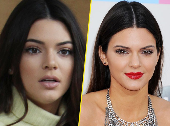 Kendall Jenner : s'est-elle fait refaire le nez ?!