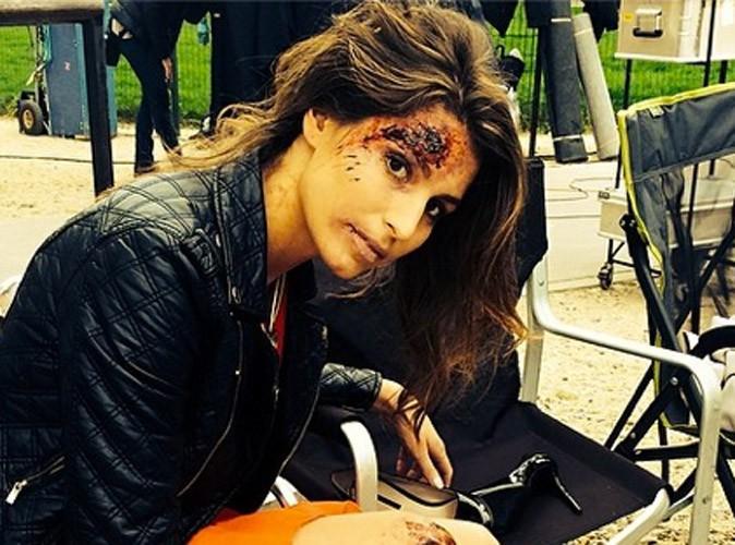 Laury Thilleman : blessée, elle fait peur à ses fans avant de les rassurer !