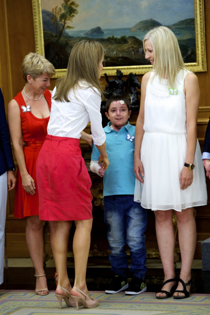 Letizia d'Espagne reçoit le 28 juillet des membres de l'association Butterfly Skin et de jeunes malades atteints d'épidermolise bulleuse