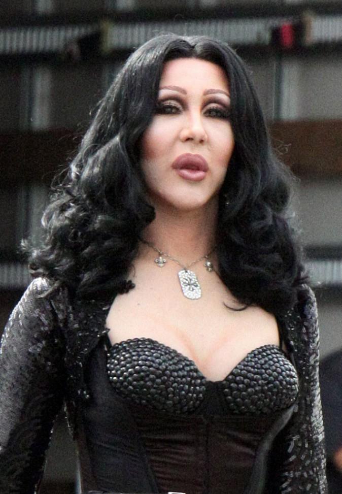 Photos : Cher : toujours aussi accro à la chirurgie !