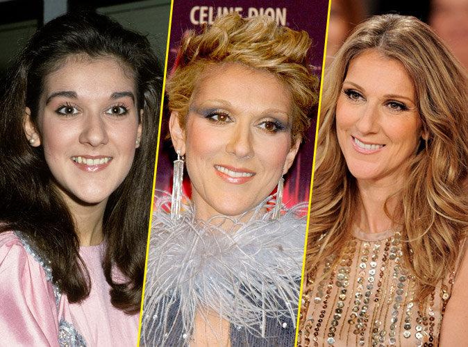 De plus en plus belle malgré les années qui passent, Céline Dion a-t-elle eu recours au bistouri ?