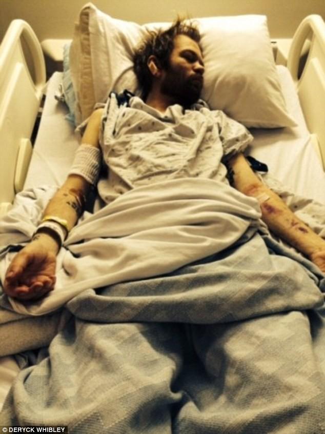 Photos : Deryck Whibley : Sum 41 bientôt de retour, il rompt le silence sur sa convalescence…