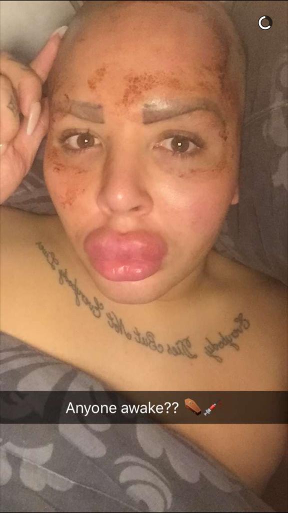 Jordan james abus de visage