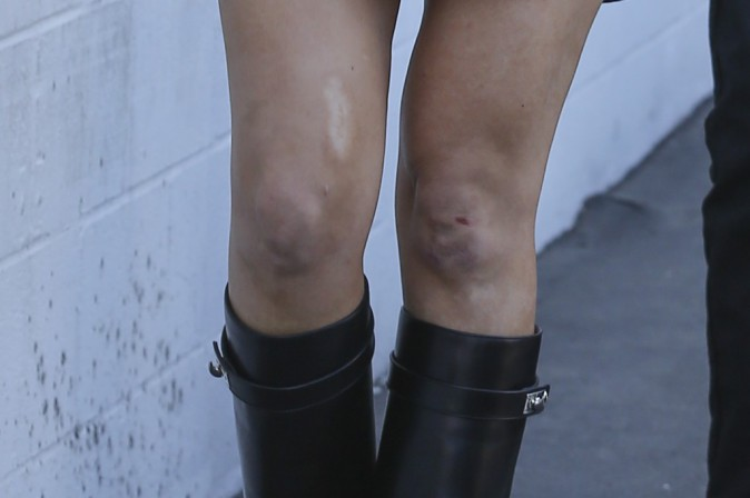 Photos : Khloe Kardashian : fière de sa nouvelle silhouette, elle exhibe ses gambettes (qui ont pris cher) !