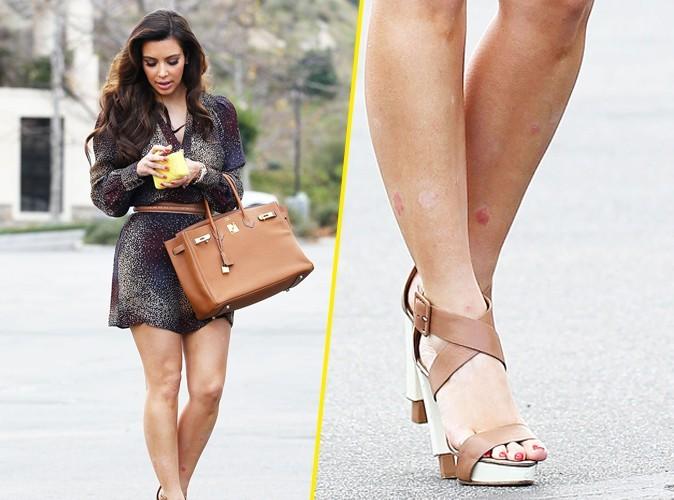 Elle a les jambes très marquées...