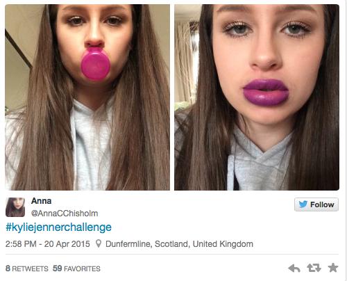 Photos : Le Kylie Jenner Challenge envahit la toile et fait déjà des blessés