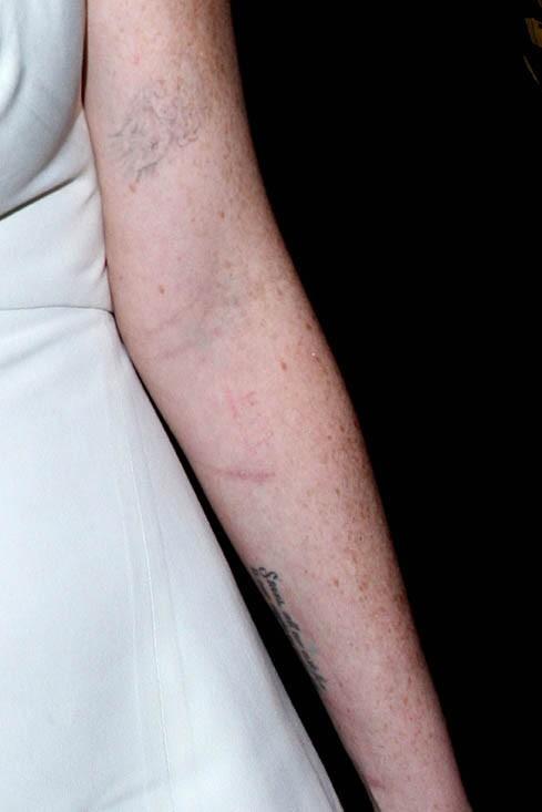 Un bras pas très flatteur..