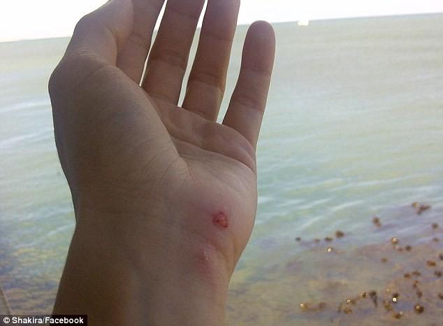 Shakira blessée à la main après l'attaque du lion de mer...