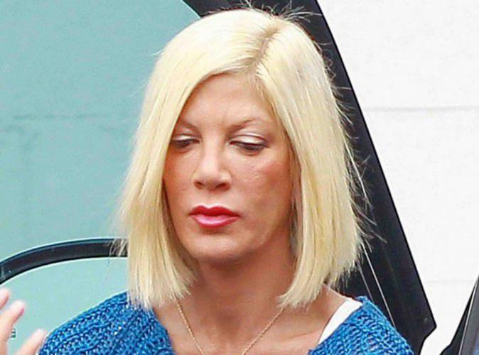Tori spelling apr s sa greffe de peau elle d cide de - Porter plainte combien de temps apres ...